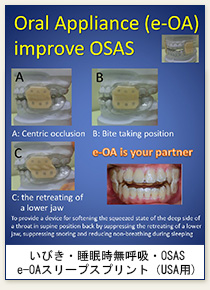 Sleep Apnea Oral Appliance : e-OA